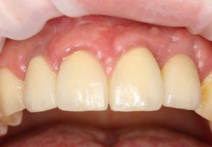 Имплантация зубов. Стоматология в Москве
